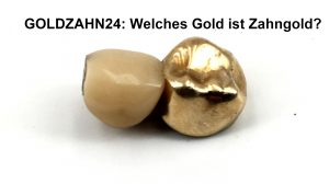 Welches Gold ist Zahngold?